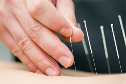 Kingscliff Acupuncture  Massage - Adwords Guide